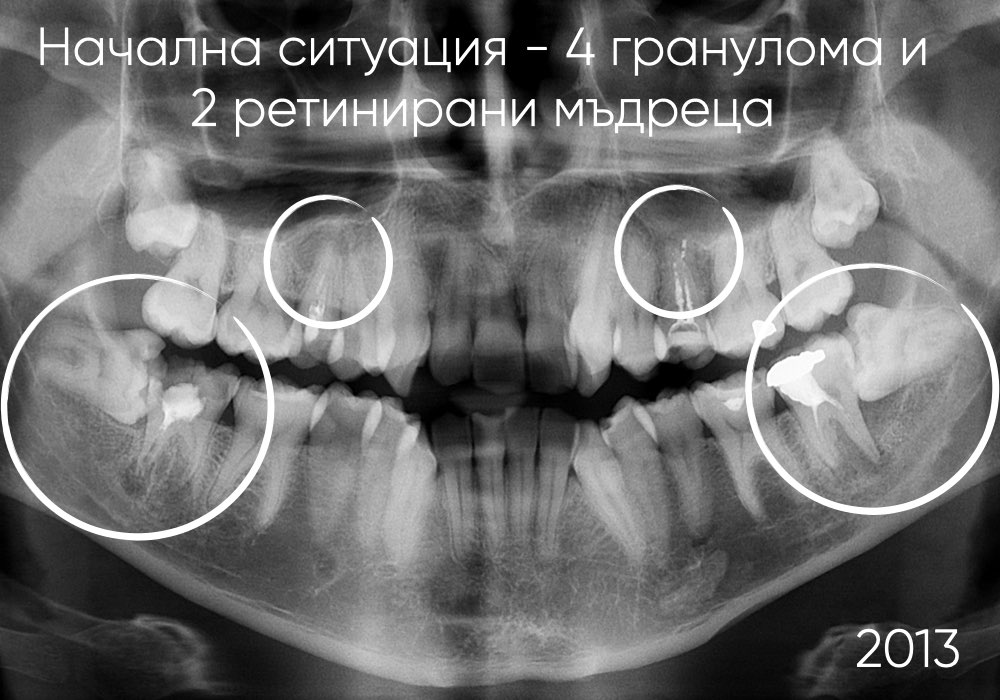 Лечение на гранулом с коренова резорбция